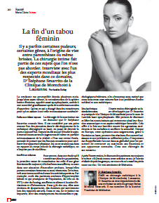 article-marie-claire-nymphphoplastie