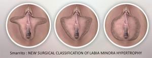 Classification des hypertrophies labiales avant nymphoplastie