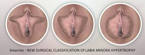 Classification des hypertrophies labiales avant nymphoplastie
